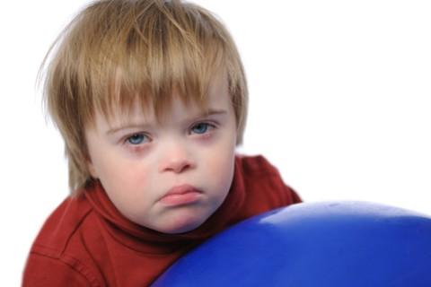 Facciamo la conoscenza con la Sindrome Down, detta anche Trisomia 21