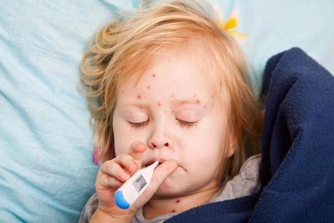 Morbillo, la vaccinazione è il vero salvavita