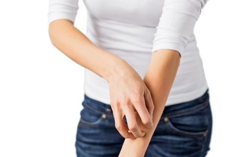 La dermatite atopica cambia nome, si chiamerà eczema costituzionale