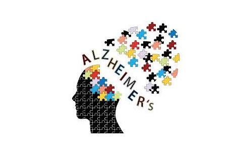 Alzheimer: sovrappeso nell'infanzia predispone allo sviluppo della malattia