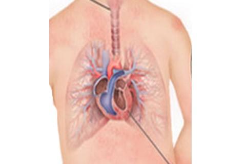 Malattia di Kawasaki, malattia delle arterie