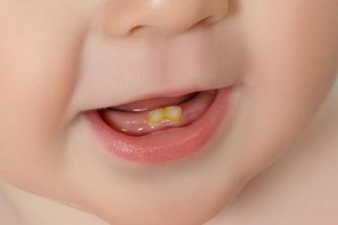 Primi dentini grandi disagi