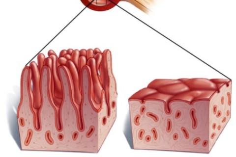 Celiachia, un disturbo in costante aumento