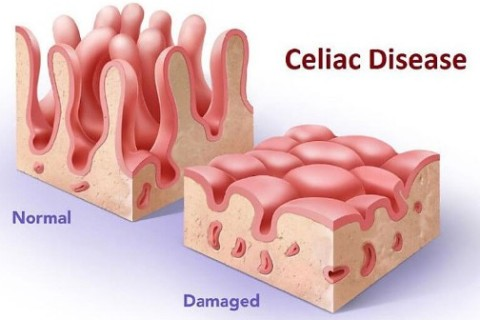 Celiachia, aumenta rimborso per i bambini