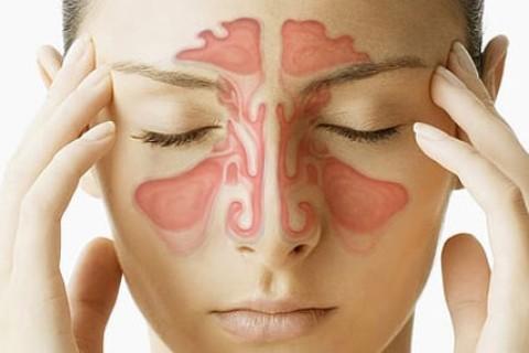 Sinusite, infiammazione dei seni paranasali, cosa fare