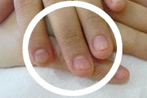 Onicofagia, ovvero, quando il bambino si mangia le unghie