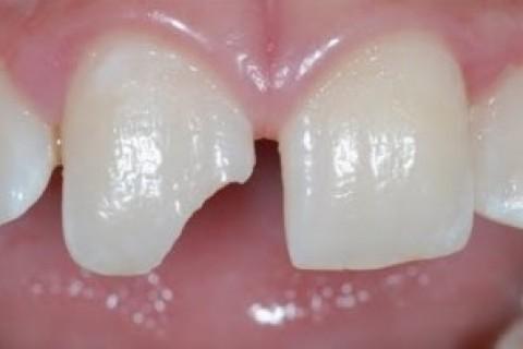 Succhietto e penna in bocca, rischio traumi ai denti