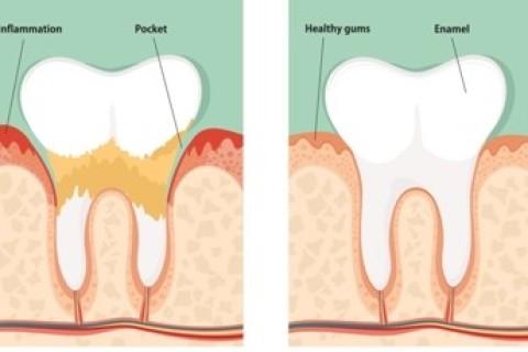 Malattie odontoiatriche e diabete: stretta correlazione