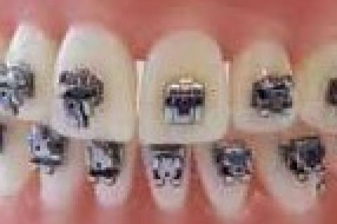Estate: non dimentichiamo l'apparecchio per i denti