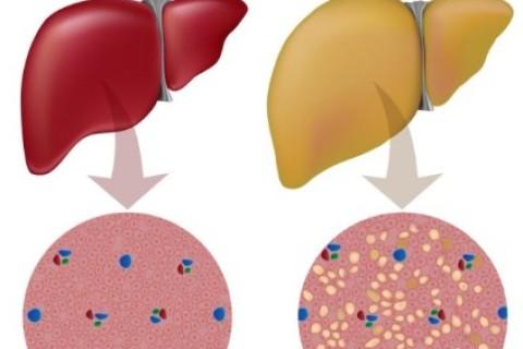 Fegato grasso, un problema di molti bambini