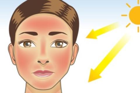 Scottature ed eritema da sole: i cibi possono causarle