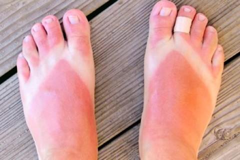 Come riparare la pelle dalle ustioni dai raggi solari