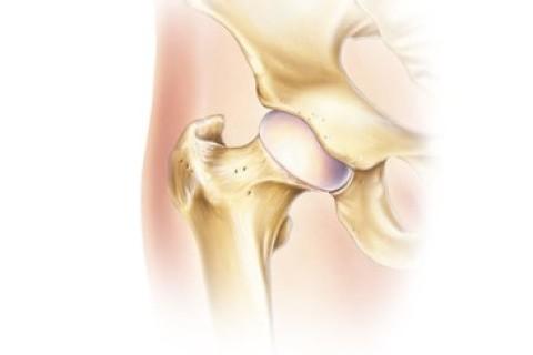 Se rifiuta di camminare può essere la sinovite dell'anca