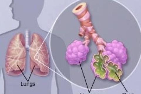 Polmonite, ottocentomila bambini morti ogni anno nel mondo