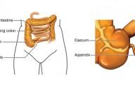 Appendicite, quando preoccuparsi
