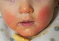 Cosmetici, gioielli e cibi: possono essere causa di allergie da contatto