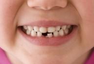 Denti spezzati: da latte o permanenti è importante intervenire velocemente