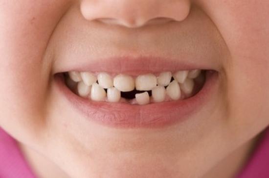 Denti spezzati da latte o permanenti importante intervenire - Immagini dei denti da colorare ...