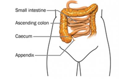 Infiammazione dell'appendicite, non sempre va tolta