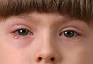 Sindrome dell'occhio secco colpa di PC e  smartphone
