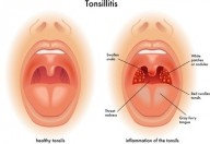 Tonsille infiammate: chirurgia o antibiotici