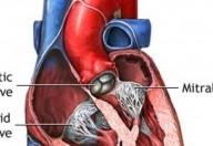 Valvulopatie: l'importanza di un intervento precoce