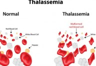 Anemia mediterranea, è la forma di anemia genetica