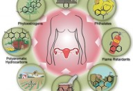 Endometriosi, la plastica una delle possibili cause