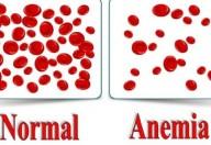 Anemia: attenzione alle malattie croniche