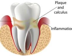 farmaci e denti