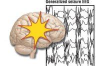 Convulsioni o epilessia: sintomatologia e diagnosi
