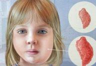 Orecchioni o parotite, una malattia da non sottovalutare