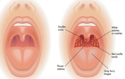 mal di gola nei bambini
