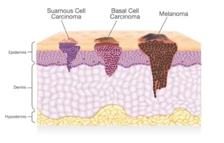 pesticidi e melanoma