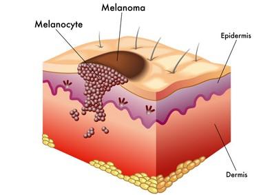 proteggere i bambini dal melanoma