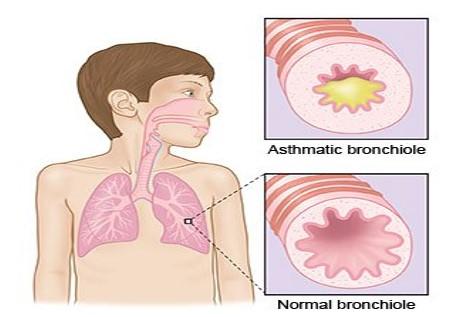 bronchiolite e asma