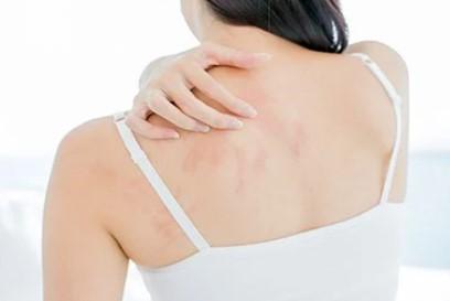 macchie sulla pelle dopo l'estate