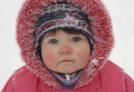 Gli effetti del freddo sulla pelle dei bambini